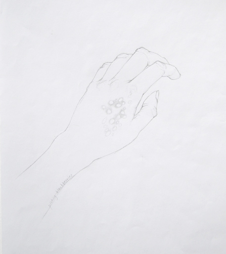 Nettle hand rash pencil drawing